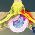 Herniated Disc (Cervical)