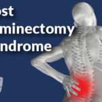 Post Laminectomy Syndrome